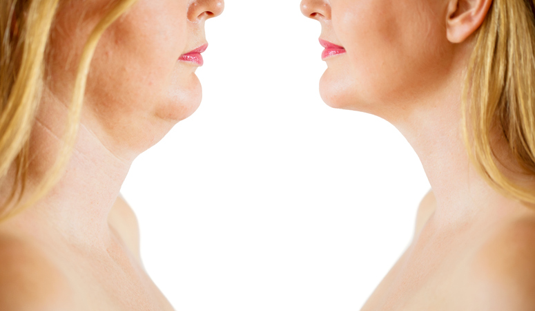 Caucasian ethnicity middle aged woman before and after chin fat or dewlap correction